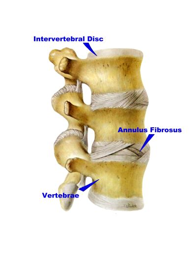 disc injury annuls fibrous chiropractic jacksonville