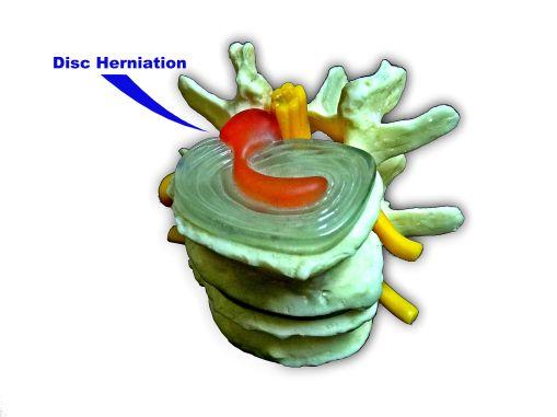Herniated Disc Chiropractor Jacksonville